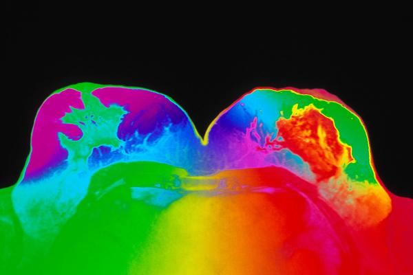 Coloured-MRI-scan-of-healthy-breasts-of-a-woman.jpg